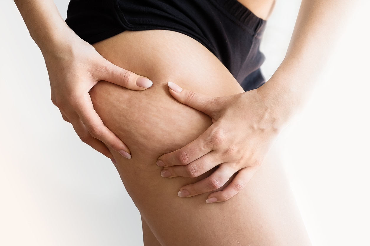 Comment se débarrasser de la cellulite